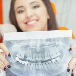6 Celebrities Who Have Dental Implants