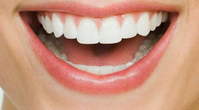 10 Methods To Get A Brighter And Whiter Smile