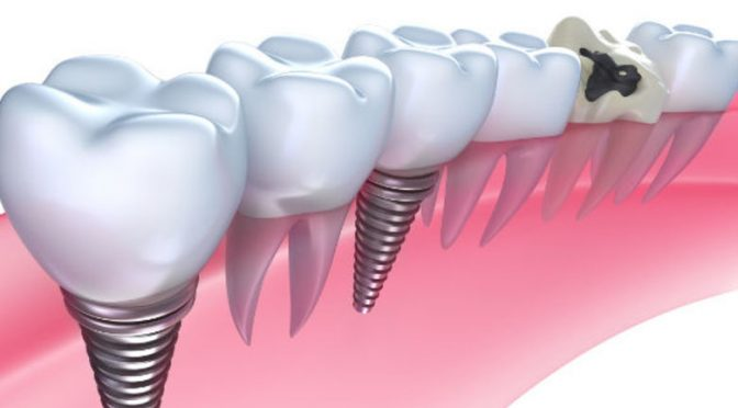 5 Methods Of Avoiding Complications in Oral Implantology